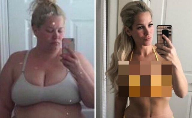 Невероятные изменения после избавления от 70 лишних килограммов