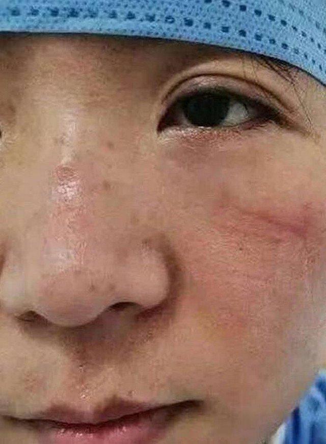 Посмотрите на лица врачей, которые борются с коронавирусом