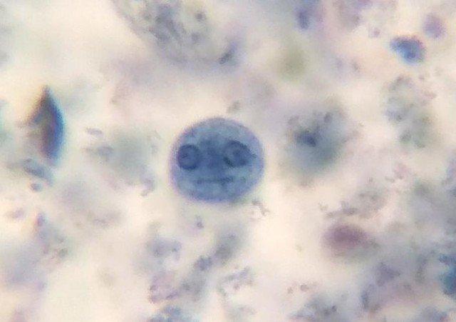 Амеба через микроскоп