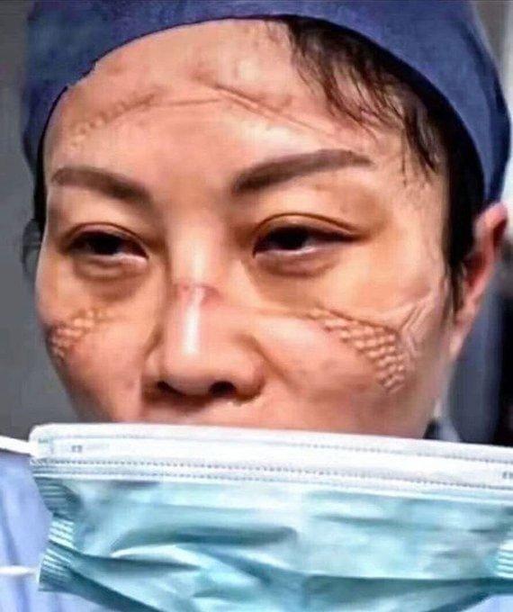 Следы от ношения медицинской маски