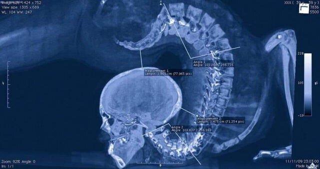 Рентген гимнастки в прогибе