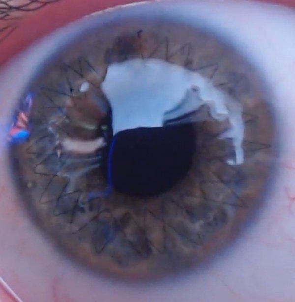 Швы на глазу после пересадки роговицы