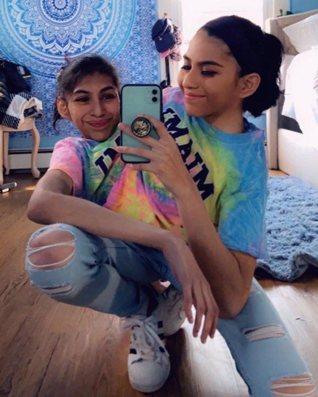 Кармен и Люпита Андраде – сиамские близнецы