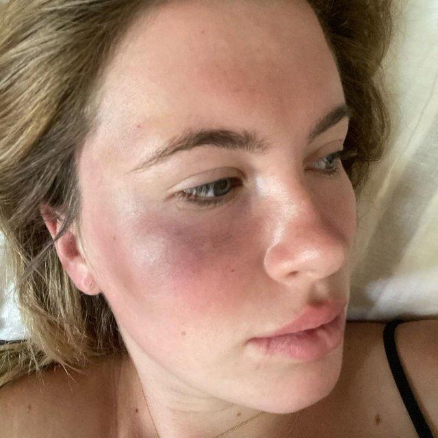 Айрленд Болдуин - дочь Алека Болдуина, которую избили на парковке в Нью-Йорке
