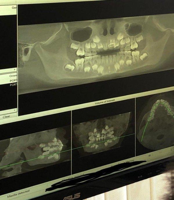 Рентген зубов ребенка