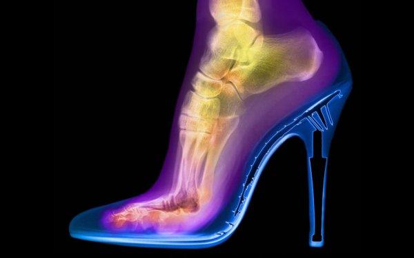 Рентген женской ступни в туфлях на каблуке