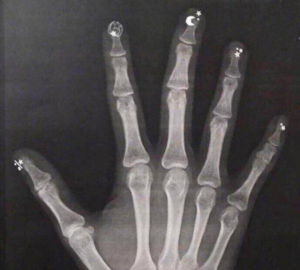 Рентген с маникюром