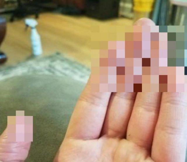 Идеальный преступник: парень рассказал, какого ему живется без отпечатков пальцев