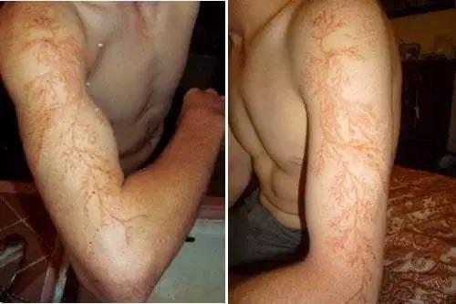Вот что происходит с кожей при ударе молнии