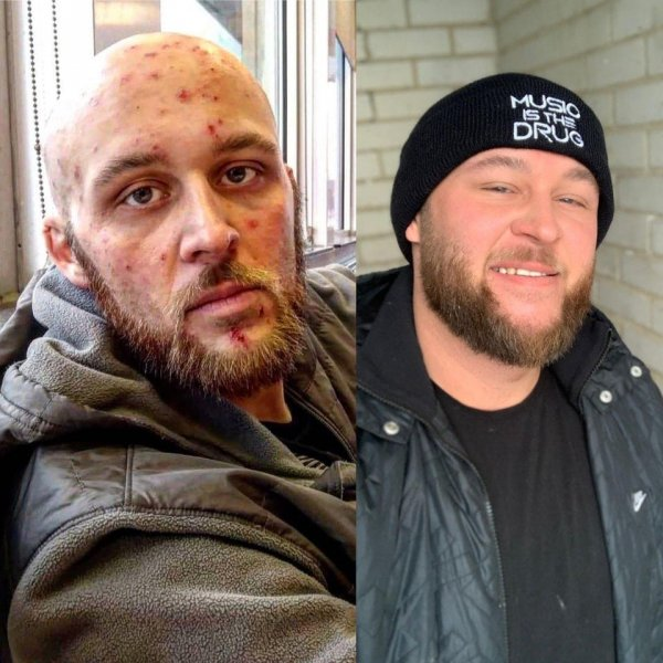До и после наркозависимости