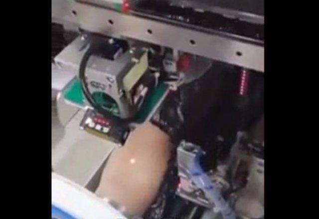 Китайский робот для взятия крови