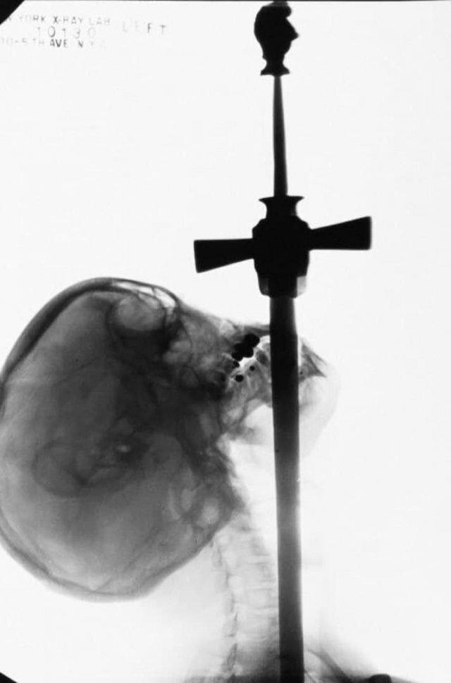 Рентгеновский снимок шпагоглотателя. Одна из самых уникальных фотографий того времени, 1928 год.