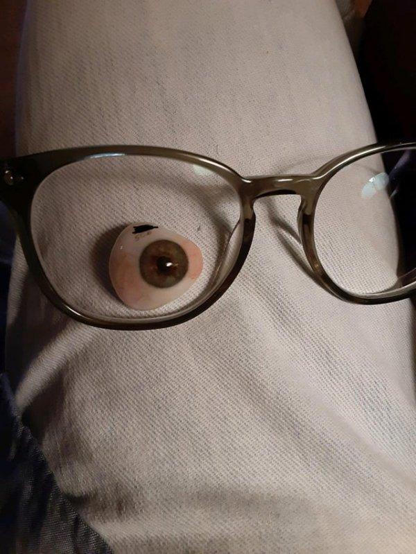Как выглядит протез глаза