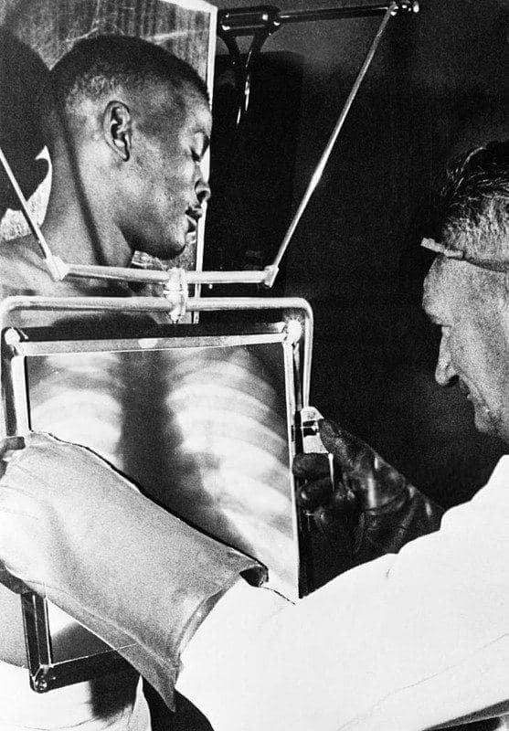 Рентгенолог проверяет желудок шахтера на наличие проглоченных алмазов, 1954 год, Кимберли, ЮАР