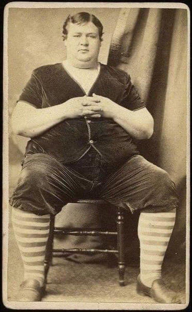 В начале прошлого века этого мужчину показывали в цирке, так как считали очень толстым. Начало 1900-х