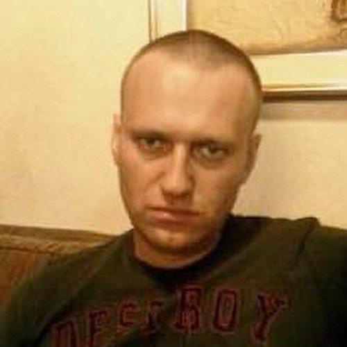 Алексей Навальный без волос