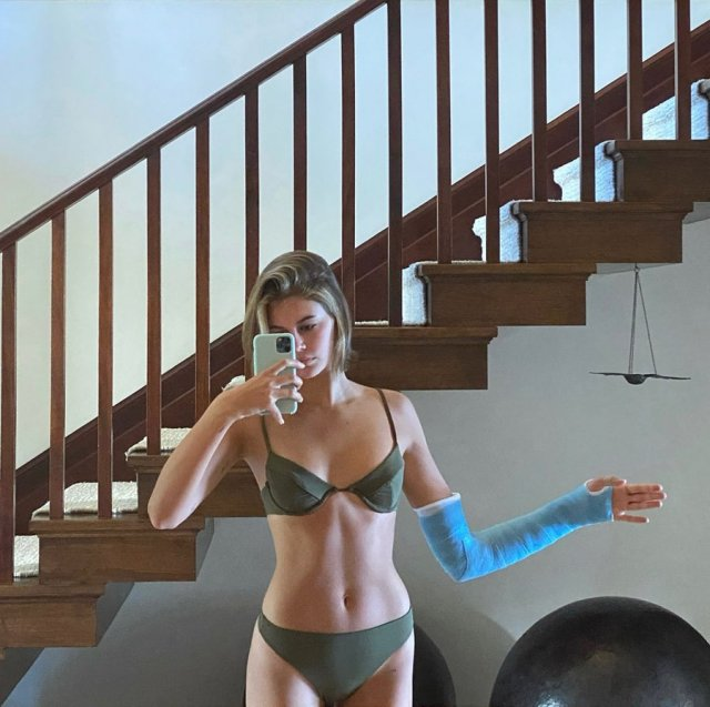 Дочь Синди Кроуфорд - Кайя Гербер в нижнем белье и гипсом на руке