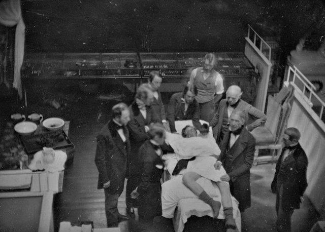 Пepвая фотография хиpypгической операции (для анестезии использовался эфир), 1847 г.