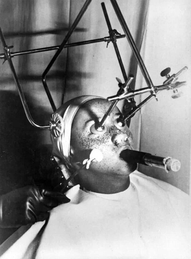 """""""Уничтожитель"""" веснушек. Во время эксперимента требовалось закрывать глаза специальными накладками, вставлять в ноздри фильтры и часами дышать только через специальную трубку. 1930-е годы"""