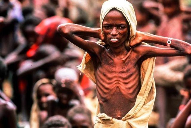 Голод в Сомали, 1992 год.