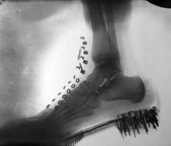 Рентген ноги Николы Теслы, который он сделал сам