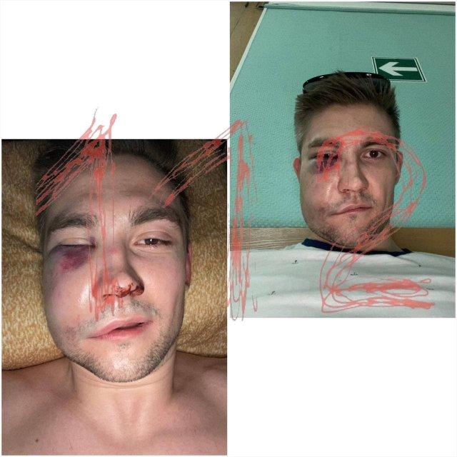Спортсмен Кевин Антипов, которого избил Александра Паль