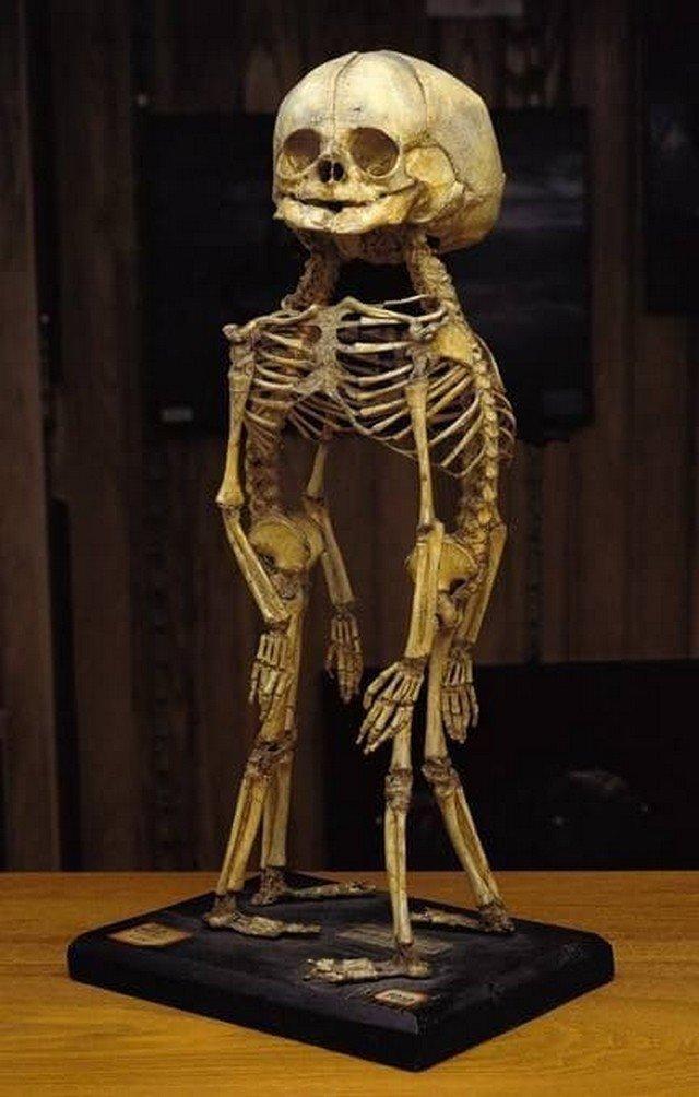 Скелет сиамских близнецов в музее Мюттера.