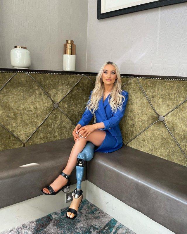 Бернадетт Хагенс - девушка без ноги,  которая вышла в финал конкурса красоты Мисс Северная Ирландия в синей кофте
