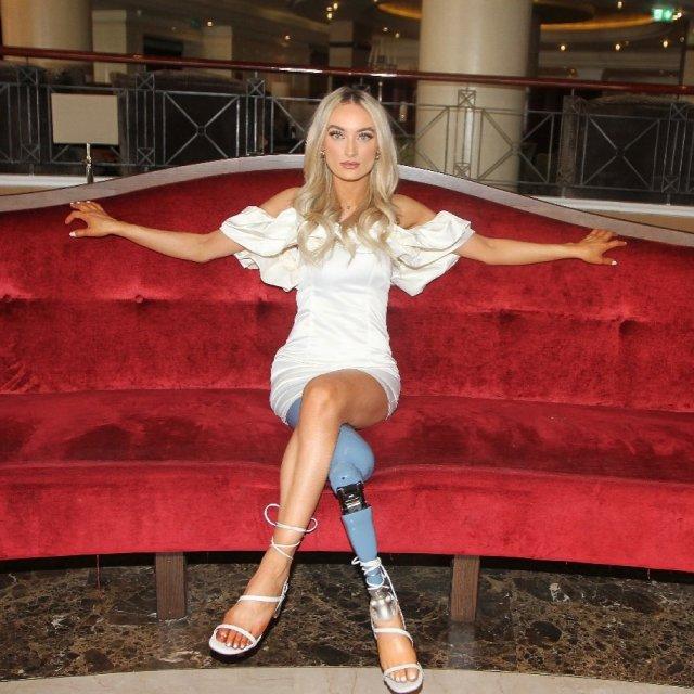 Бернадетт Хагенс - девушка без ноги,  которая вышла в финал конкурса красоты Мисс Северная Ирландия сидит в белом платье на красном диване