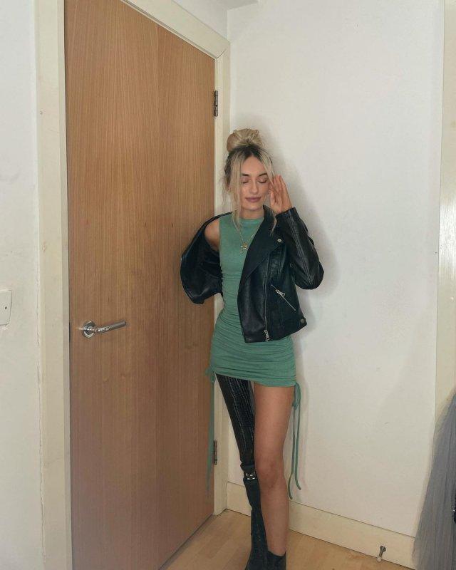 Бернадетт Хагенс - девушка без ноги,  которая вышла в финал конкурса красоты Мисс Северная Ирландия в зеленой кофте