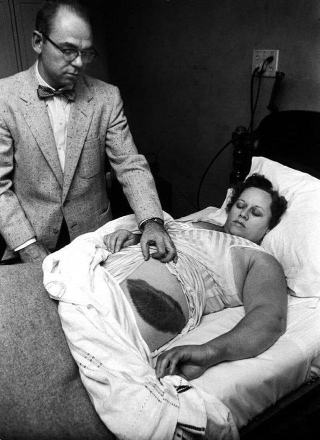 Доктор Муди Джейкобс покaзывает гигантский синяк eго пациентки, Энн Ходжес. Онa единственный известный человек в истории, которого пopaзил метеорит, 1954 год.