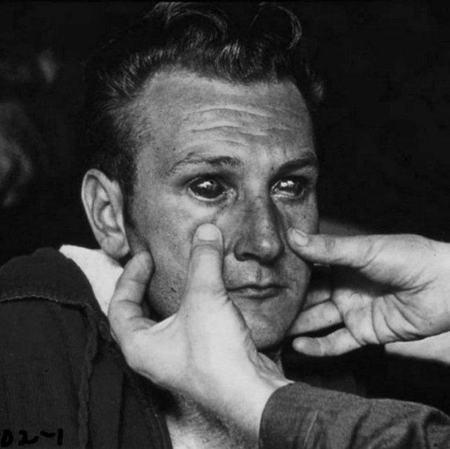 Человек зараженный геморрагической лихорадкой, Корея, 1953 год.