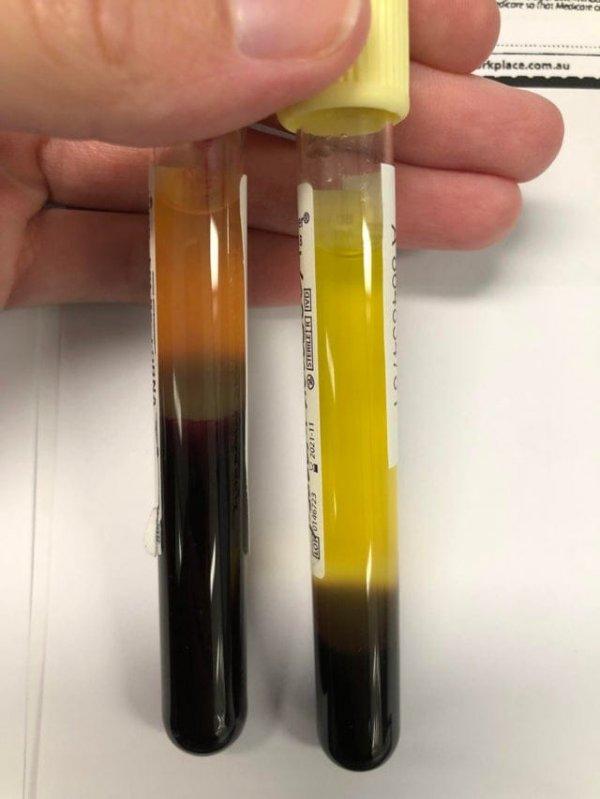 Так выглядит кровь с анемией (справа) по сравнению с нормальной (слева)