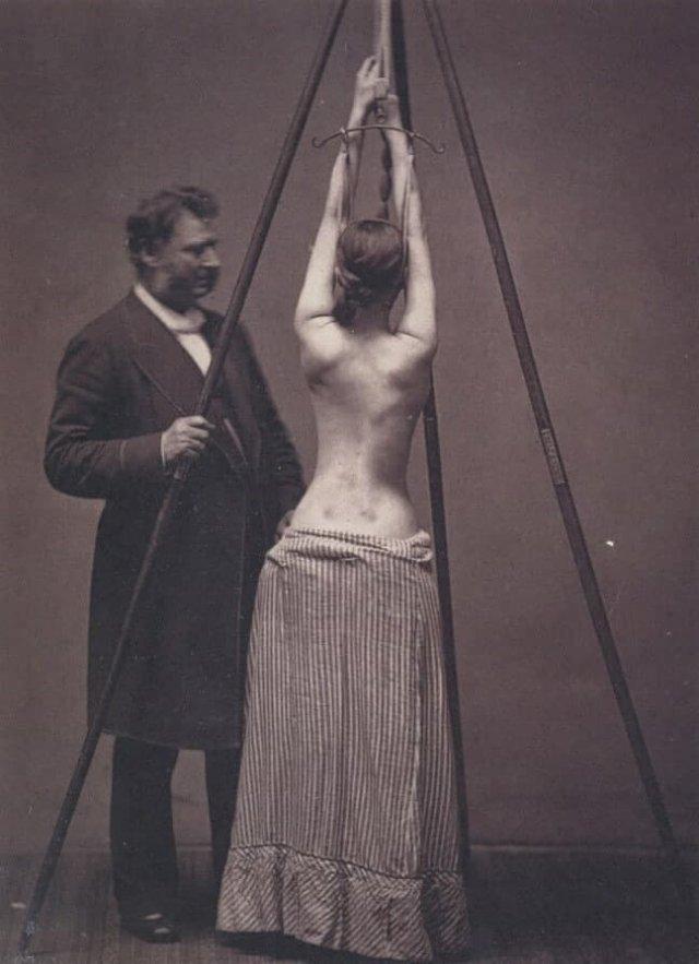 Доктор Льюис Сейр лечит сколиоз, Англия, конец XIX века.