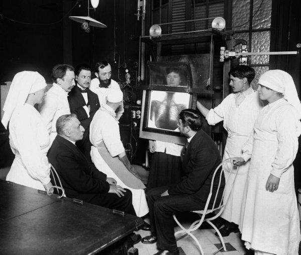 Примерно 1910 год, Франция. Радиоскопия