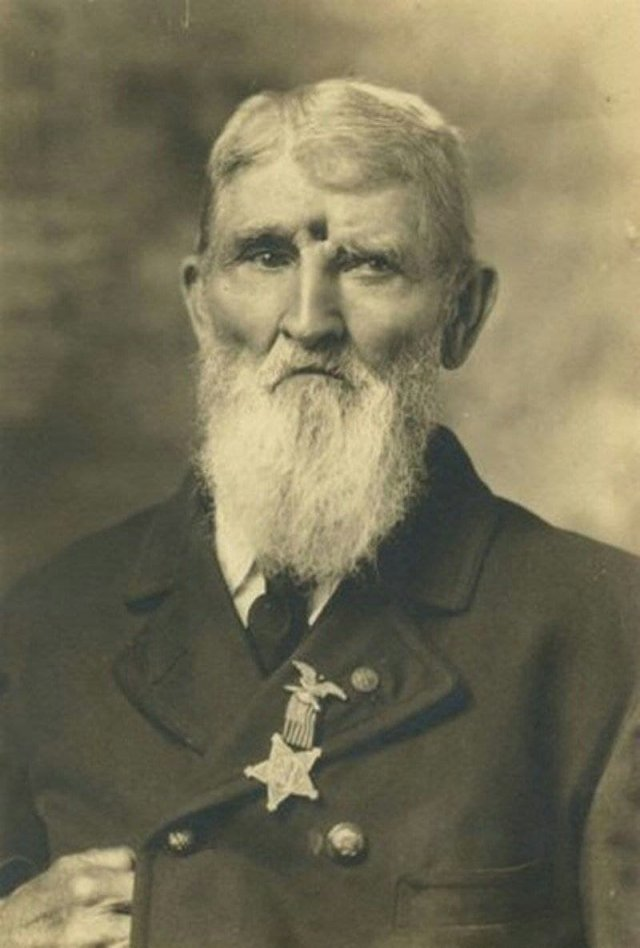 Ветеран Гражданской войны Джейкоб Миллер, 1911 год. Он прожил с открытым пулевым ранением много лет.