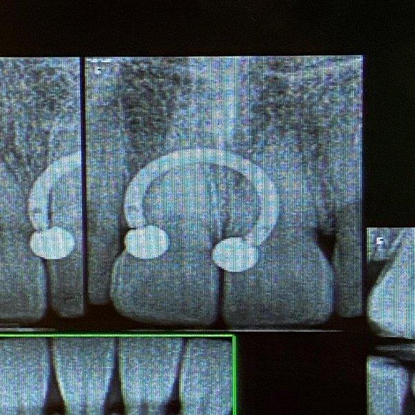 Серёжка для септума видна на рентгеновском снимке зубов