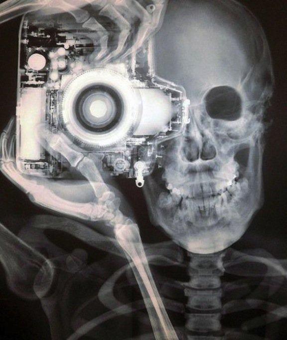 Рентген фотографирующего человека