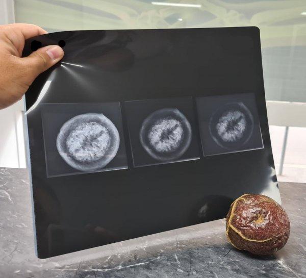 Рентген маракуйи