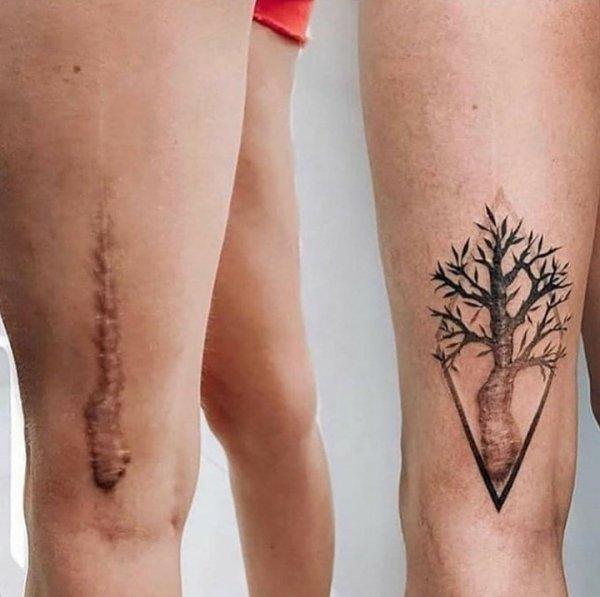 Татуировки, которые действительно украшают кожу и спасают от комплексов