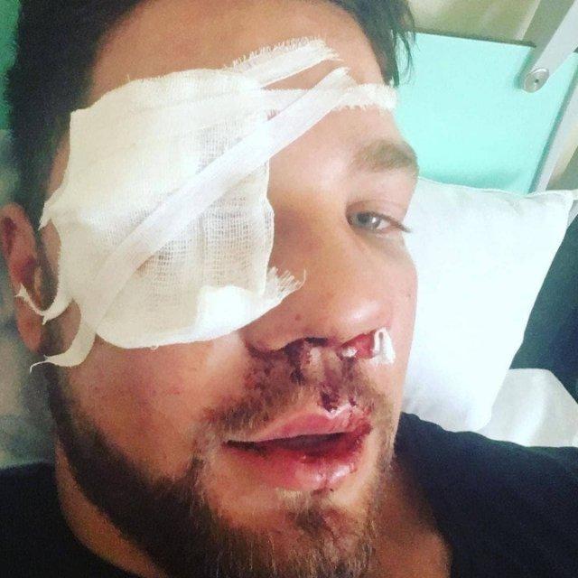 Русский парень Роман Ковалев пришел в себя в больнице после того, как его избила толпа дагестанцев