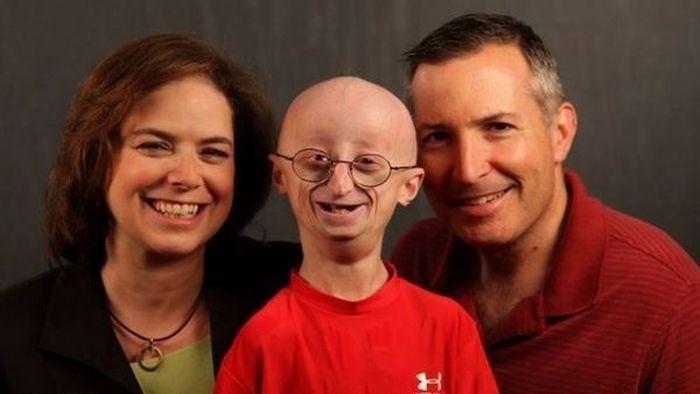 ABD 'de 17 Yaşındaki Yaşlılık Hastası Öldü. (4 Fotograf)
