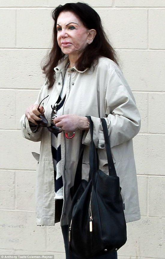 Мама Сильвестра Сталлоне после пластических операций (6 фото)