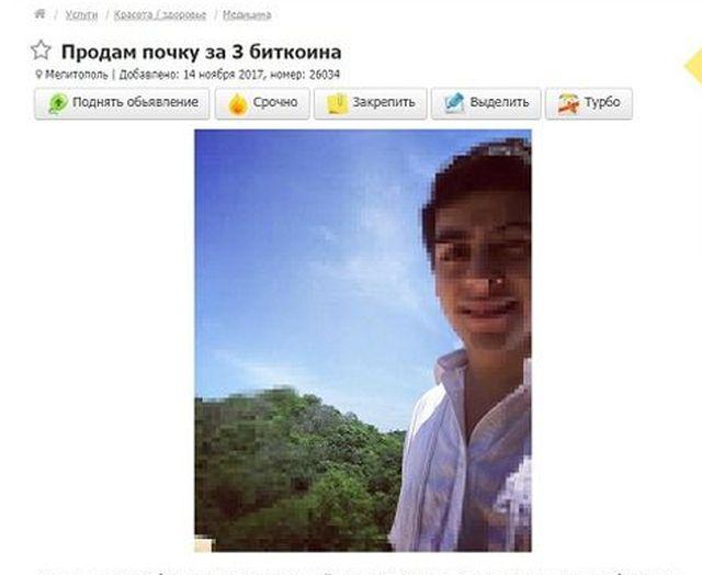 Украинец решил продать свою почку за 3 биткоина