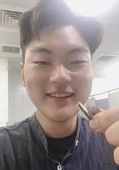 Житель Тайваня по случайности проглотил наушник AirPods (2 фото)