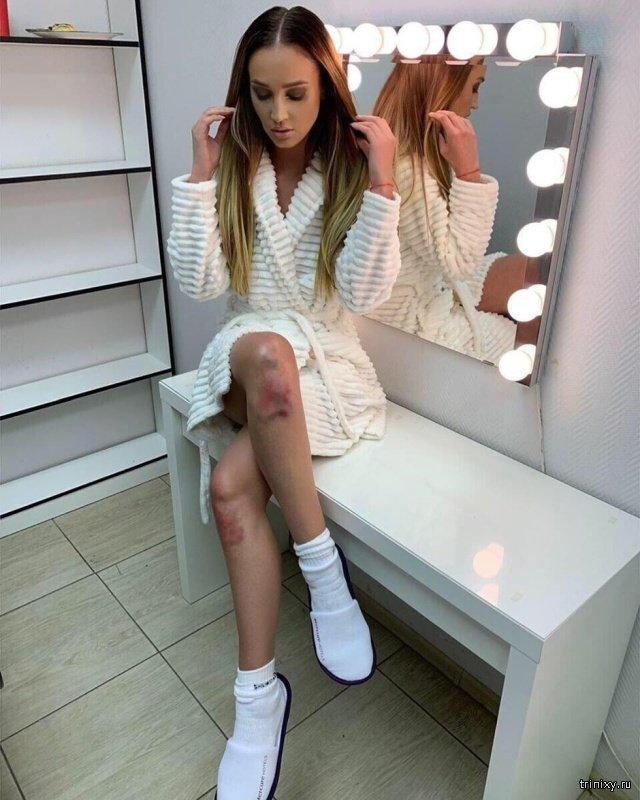 Трудный путь к успеху: Ольга Бузова опубликовала фото с разбитыми коленями (2 фото)