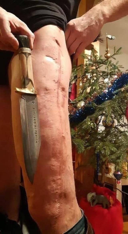 Безотходное производство. Байкер сделал нож из своей бедренной кости (8 фото)