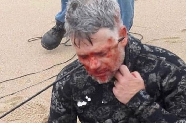Аквалангист из ЮАР нечаянно выстрелил себе в голову гарпуном (3 фото)