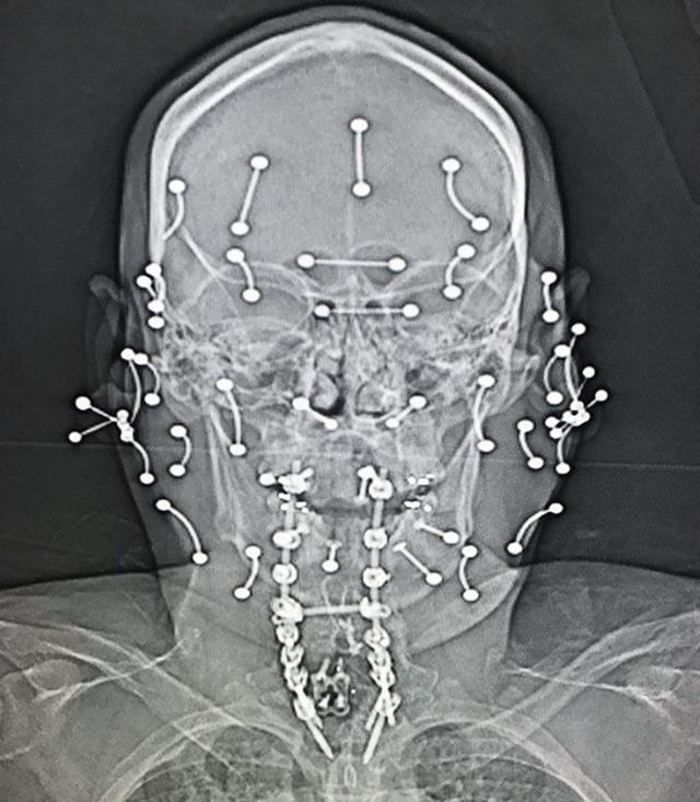 Мир глазами рентгенолога (15 фото)