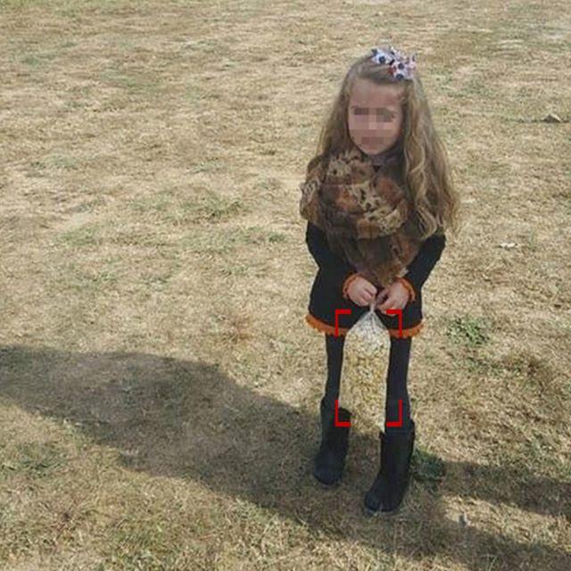 Пользователи Сети перепугались, когда увидели фото девочки с экстремально худыми ногами (2 фото)